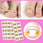 Glue Free Toenail Patch - 1Pack (10pcs)