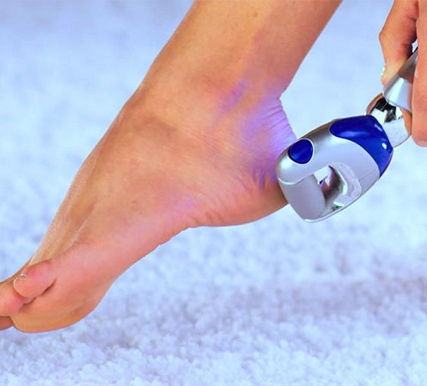 Pedegg Powerball Rechargeable Callus Remover image from BulbHead