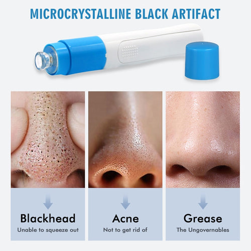 Electric Suction Blackhead Remover Vacuum
