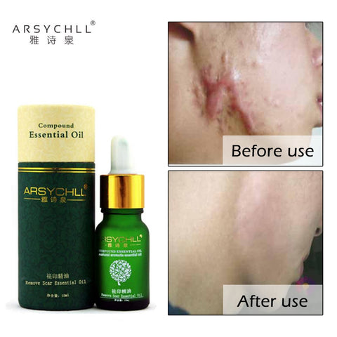 Face Care Acne Scar Removal