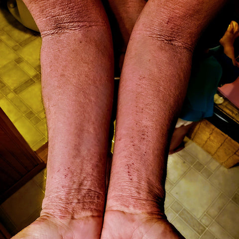 Ashley's red, cracked, and swollen forearms