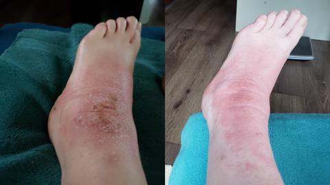 before and after picture of ankle with scabbing