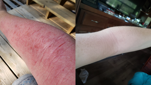 before and after of inside elbows with eczema
