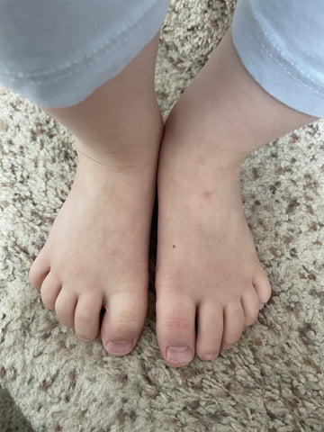 feet with less redness and bumps