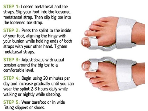 orthopedic bunion corrector reviews