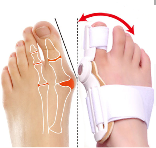 Toe - Best Orthopedic Bunion Corrector - Adjustable And Non-Surgical Natural Treatment & Relief