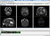 ImageGrid 9TB Mini-PACS System with DICOM Viewer and DICOM Storage