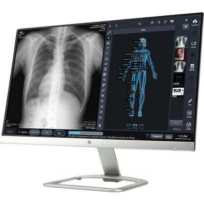 ControlX Z-MOTION Digital X-ray System