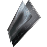 Fuji FDR D-EVO GL - Long length Digital X-ray