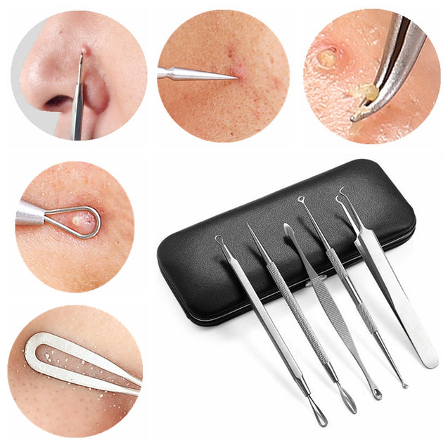 Y.F.M Blackhead Remover Kit Pimple Comedone Extractor Tool Acne Removal Set With Mirror