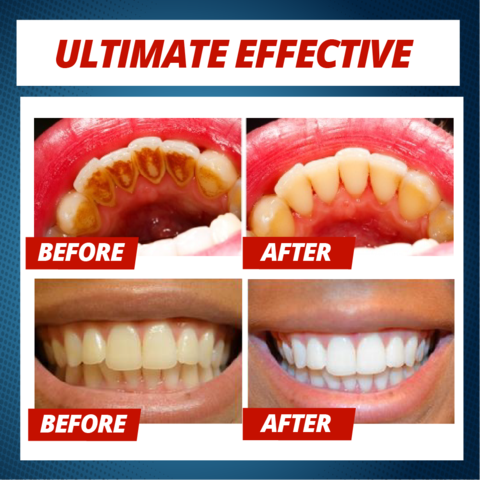 (Buy 2 Get Free Shipping) Intensive Stain Removal Whitening Toothpaste