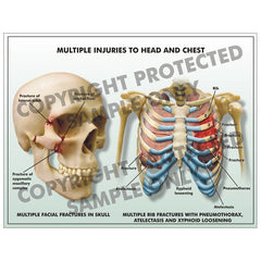 Injuries to head and chest