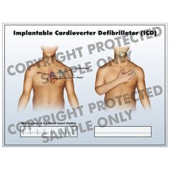 Implantable cardioverter defibrilator