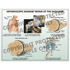 Arthroscopic right shoulder surgery