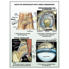 Arthroscopic left hip surgery
