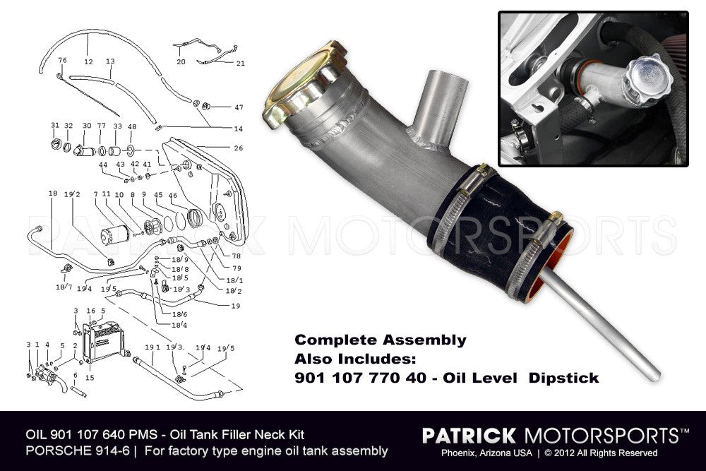 OIL 901 107 640 PMS: 914 6 OIL TANK FILLER NECK KIT
