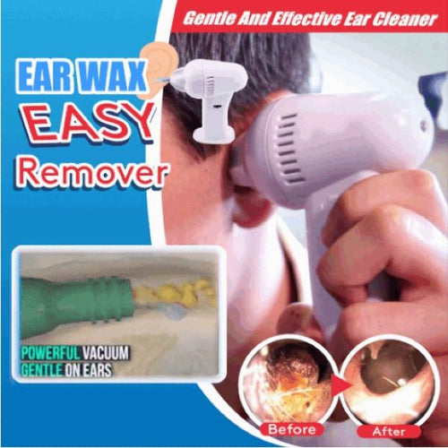 Safe Effective Ear Wax Easy Remover