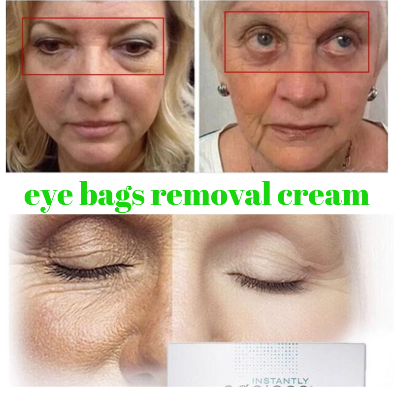Eliminate Instantly Under Eye Bags Wrinkle Puffiness Cream Ageless - fashionniste