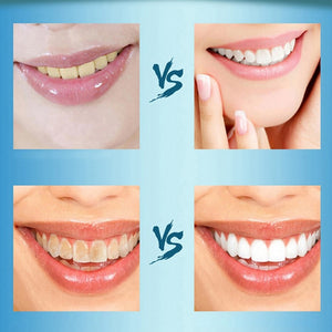 Daily Use Teeth Whitening Scaling Powder Oral Hygiene