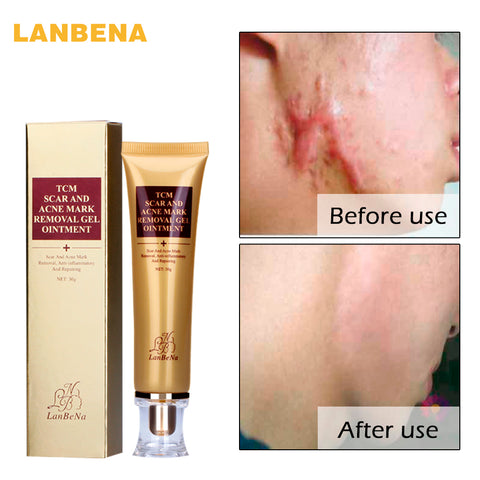 LANBENA Acne Scar Removal Cream Skin Repair Face Cream Acne Spots Acne Treatment Blackhead Whitening Cream Stretch Marks - fashionniste