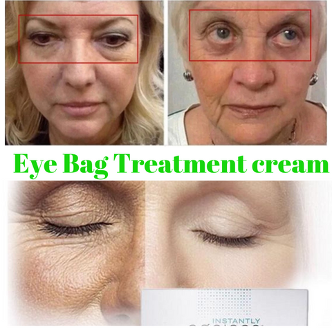 Image of Eliminate Instantly Under Eye Bags Wrinkle Puffiness Cream Ageless - fashionniste