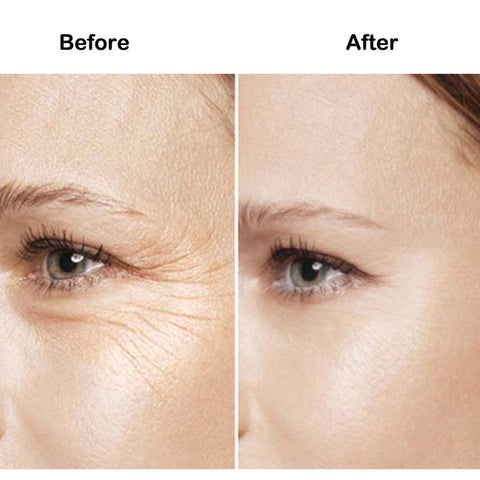 Image of Eliminate Instantly Under Eye Bags Wrinkle Puffiness Cream - fashionniste