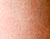 Are These Bumps Razor Burn or Keratosis Pilaris?