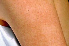 Keratosis Pilaris Treatment