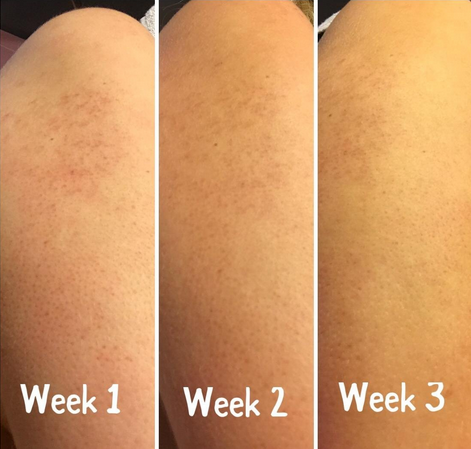 Keratosis Pilaris Treatment – KP Elements