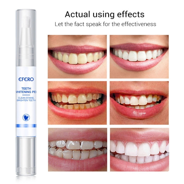 Dental Whitening Pen