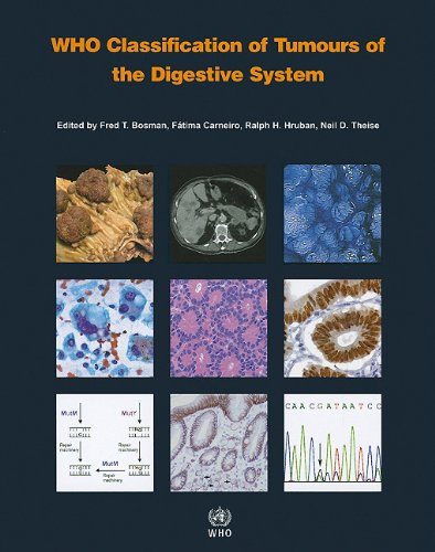 Who Classification Of Tumours Of The Digestive System (Iarc Who Classification Of Tumours)