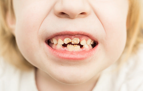 rooten-teeth-tooth decay prevention in children