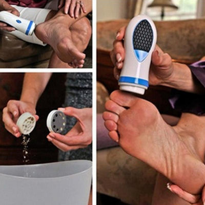 FOOT CALLUS SPIN REMOVER