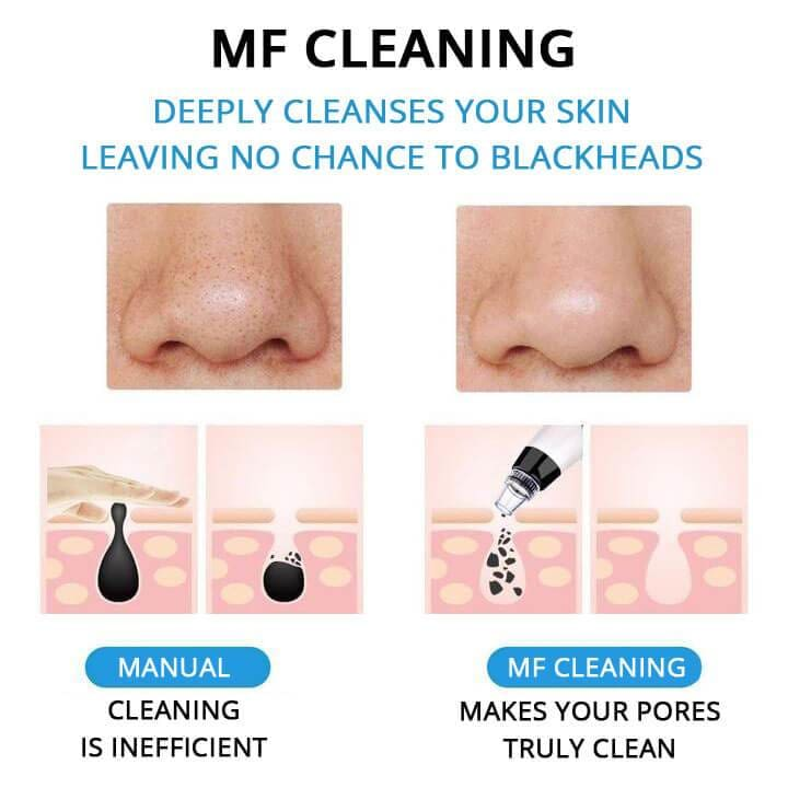MF Cleaning Vacuum Pore Cleaner - Mounteen.com