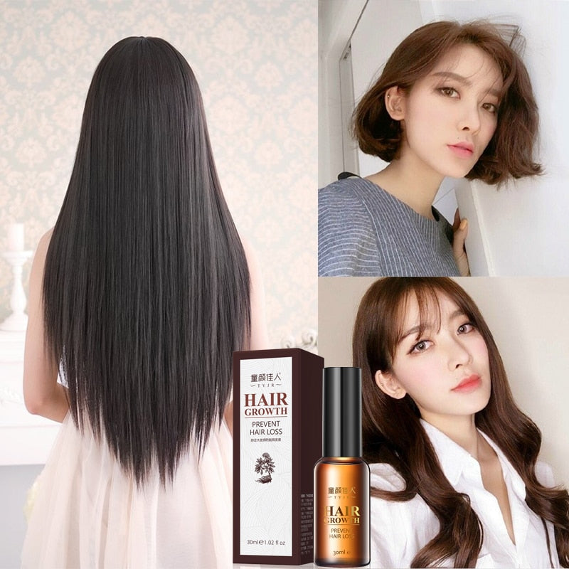 1 Bottle 30ml  Hair Care Essence Hair Growth Liquid Growth Hair Growth Prevention Hair Loss Spray Liquid Men/Women