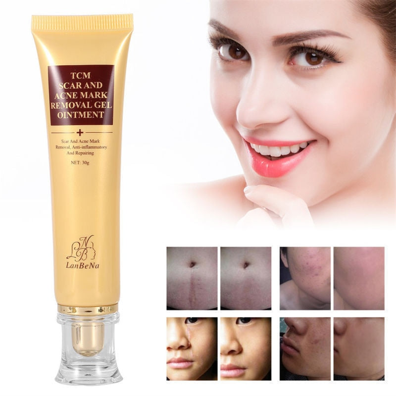 LANBENA Acne Scar Removal Cream Skin Repair Face Cream Acne Spots Acne Treatment Blackhead Whitening Cream Stretch Marks TSLM1