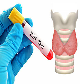 Thyroid Blood Test