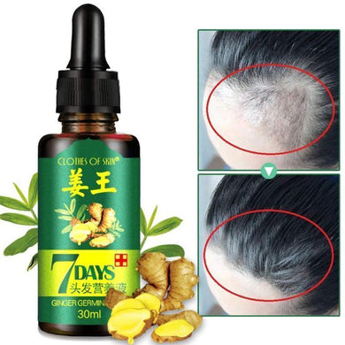 Hair Growth Essential Ginger Oil-Serum Hair Loss Baldness Treatment 30 ml / 1 oz