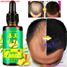 Load image into Gallery viewer, Hair Growth Essential Ginger Oil-Serum Hair Loss Baldness Treatment 30 ml / 1 oz