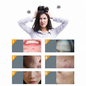 Little Acne Treatment Stickers