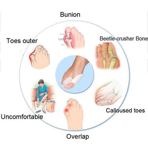 Gel Bunion Shield Toes Separate