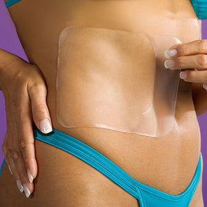 Stretch Marks and Scar Removal Marks