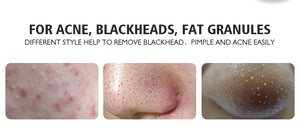 Blackhead Removal Needles