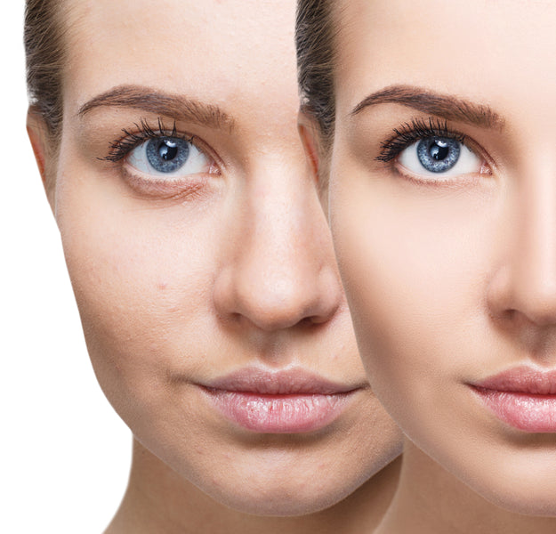 Chemical Peels vs. Skincare