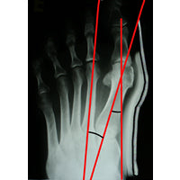 After Bunion Aid