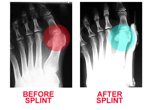 Bunion Aid splint bunion treatment