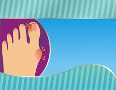 Gel-style products may provide cushioning for bunions