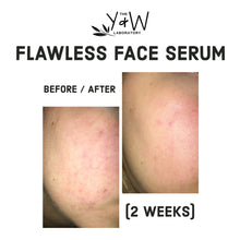 Load image into Gallery viewer, Organic Flawless Face Serum - before and after facial redness