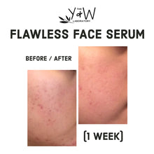Load image into Gallery viewer, Organic Flawless Face Serum - before and after acne scars