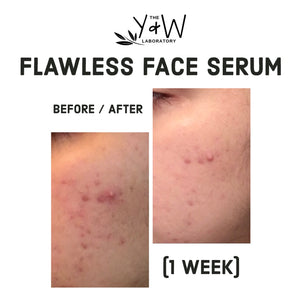 Organic Flawless Face Serum - before and after acne scars
